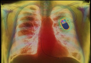 Coloured X-ray of chest showing heart pac